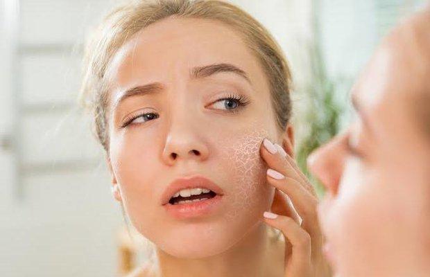 Kış aylarında cildin nem istikrarını muhafaza yolları